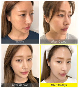 somebymi yuja niacin sleeping mask before after